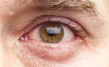 Блефарит: симптоми та лікування