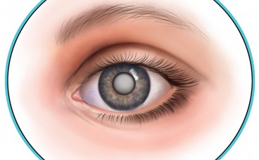 Чи можна знизити ризик розвитку катаракти?
